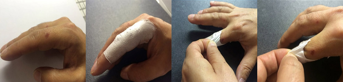 Fabrican cast and bandages